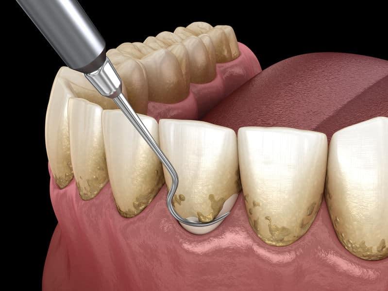 Best Tulsa Dental Care