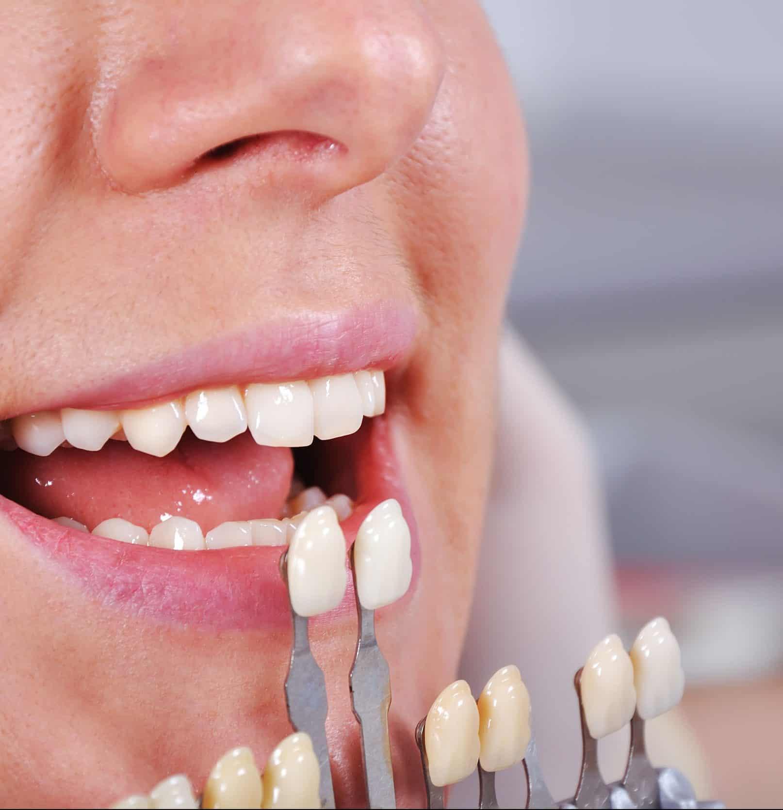 Top Tulsa Dentist
