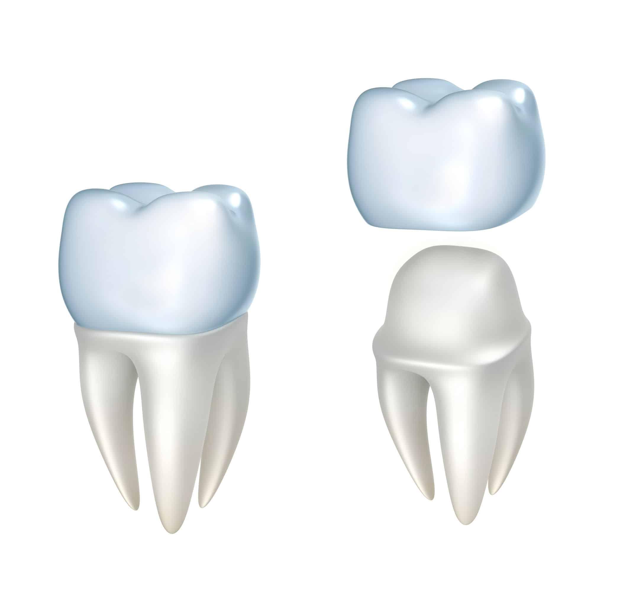 dental crown tulsa, ok