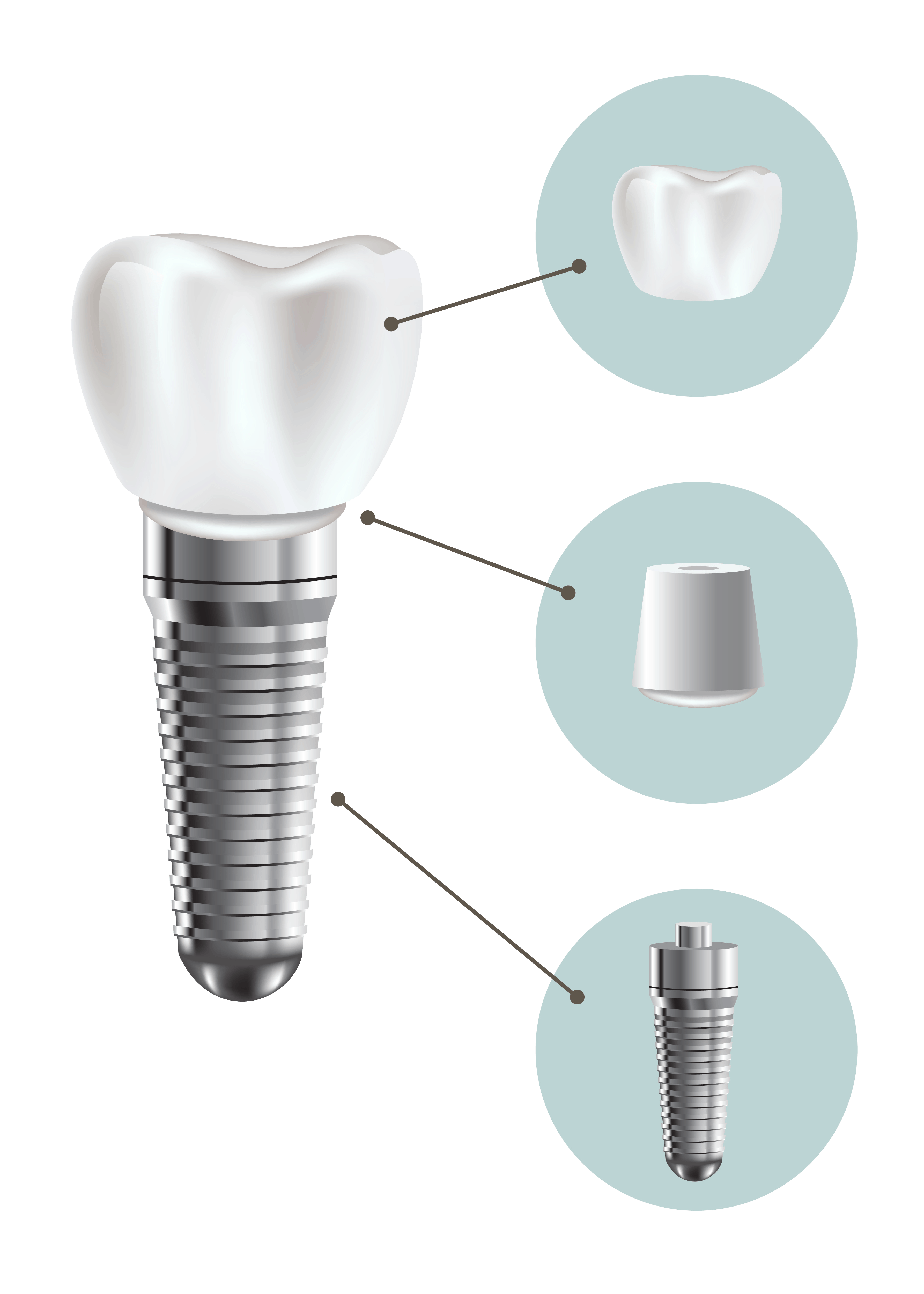 Dental implant structure medical pictorial educative infographic poster