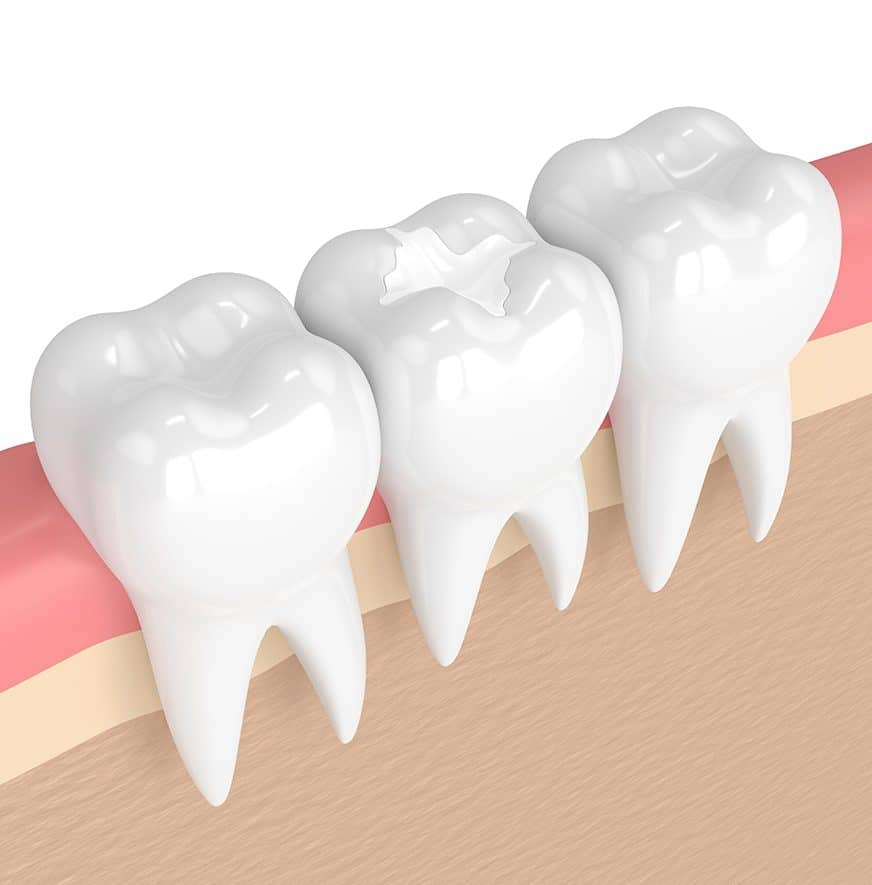 3d render of teeth with dental composite filling in gums