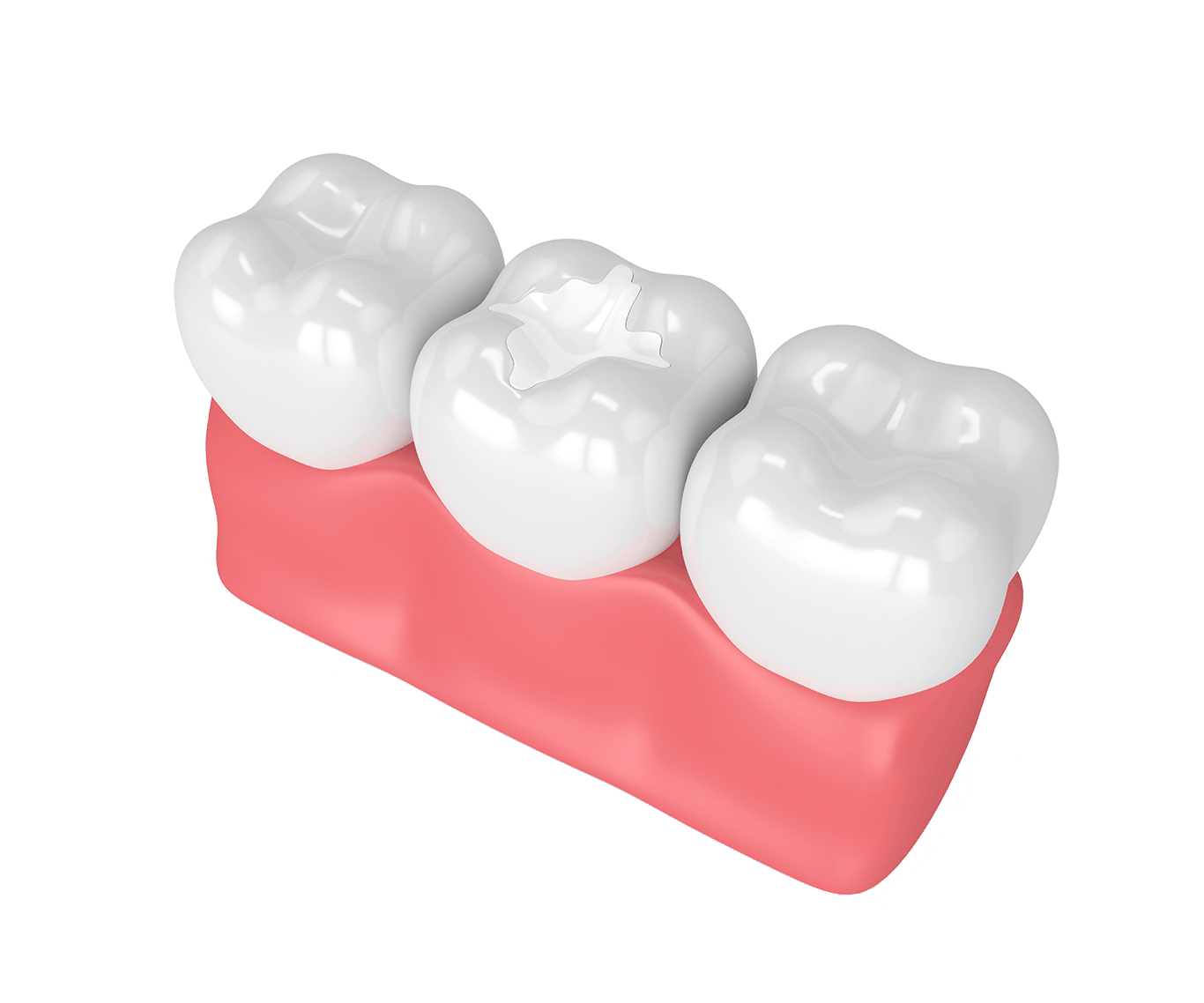 3d render of teeth with dental composite filling in gums over white background