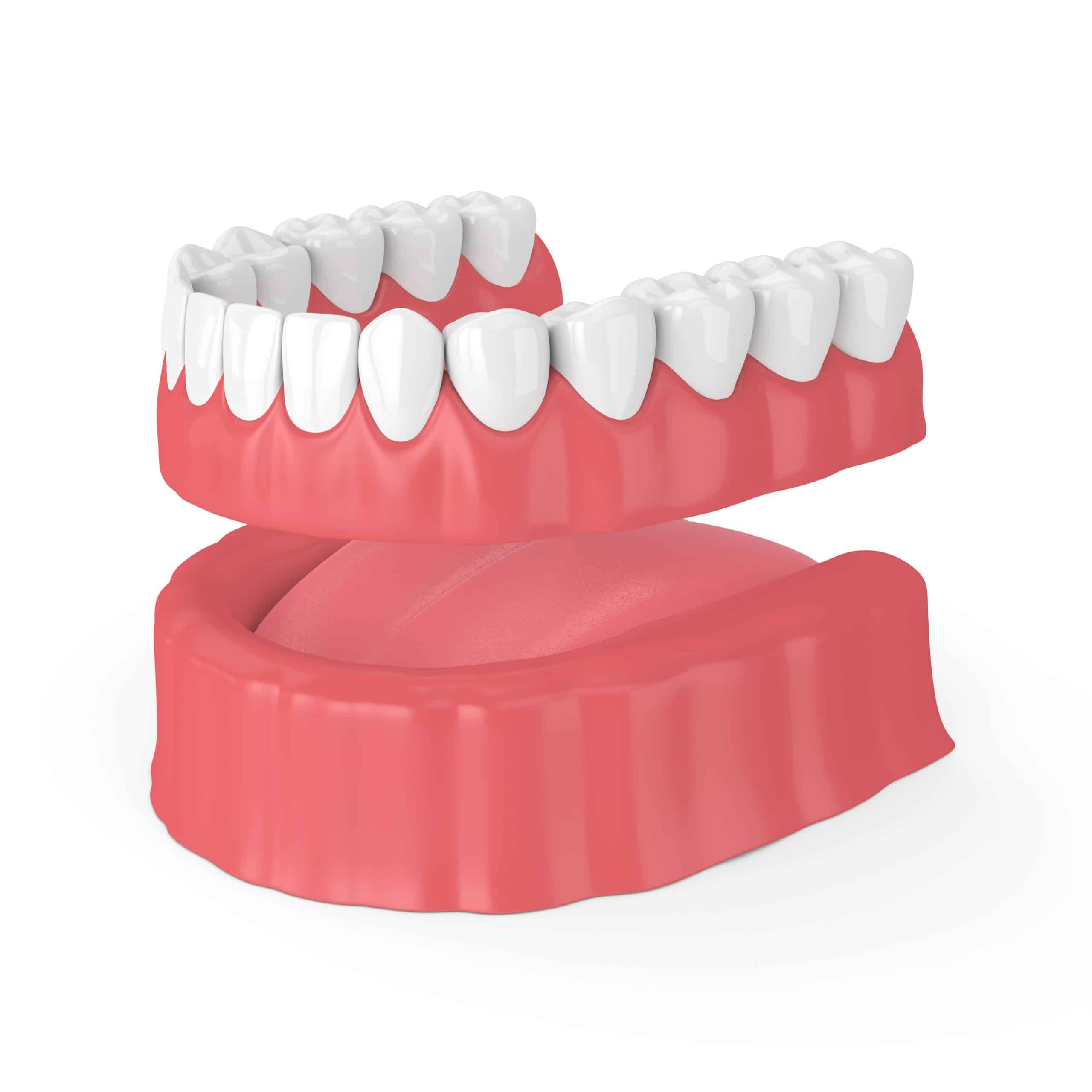 3d render of removable full denture isolated over white background