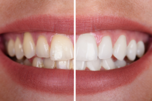 Example of teeth whitening benefits